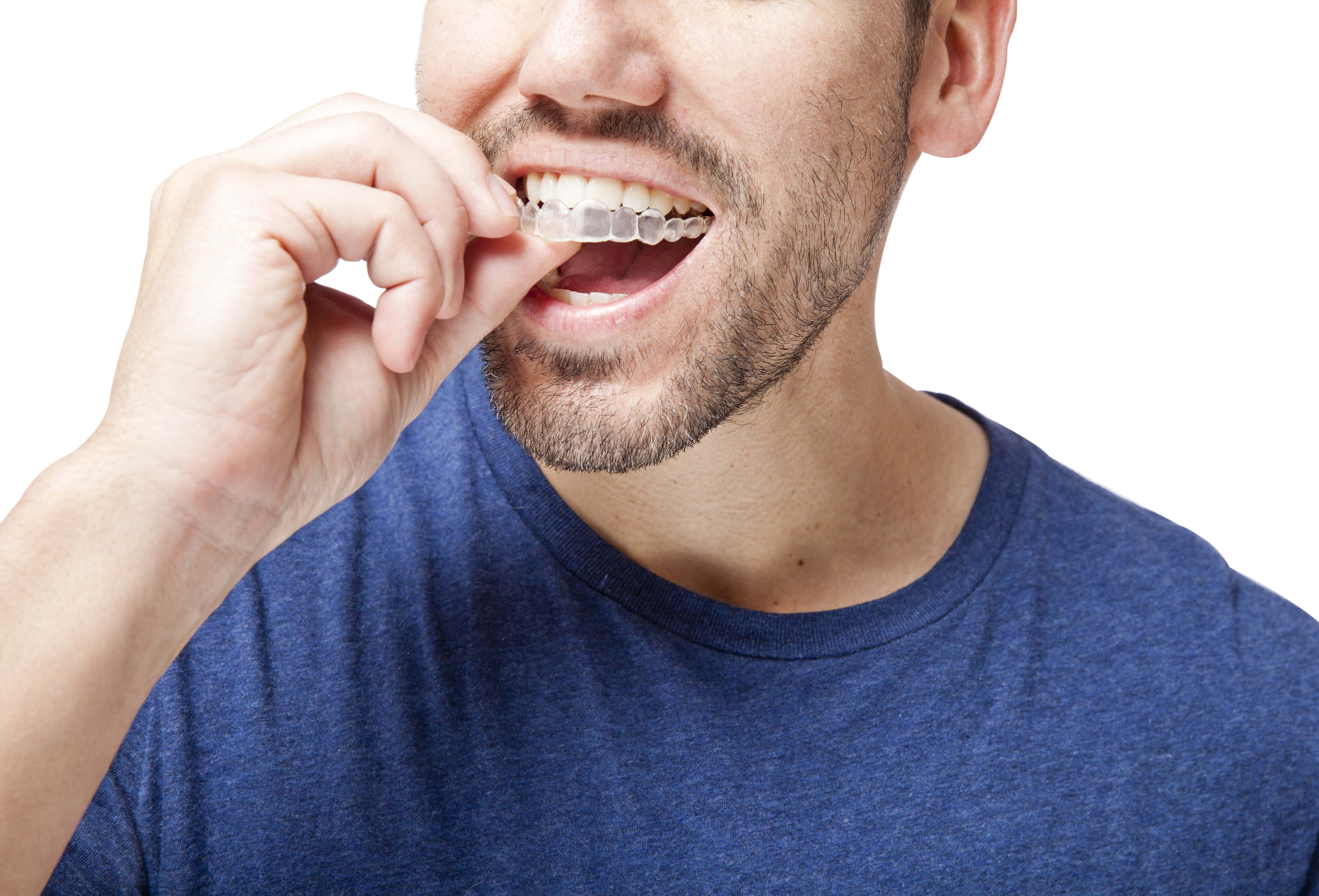 invisalign treatment alpharetta