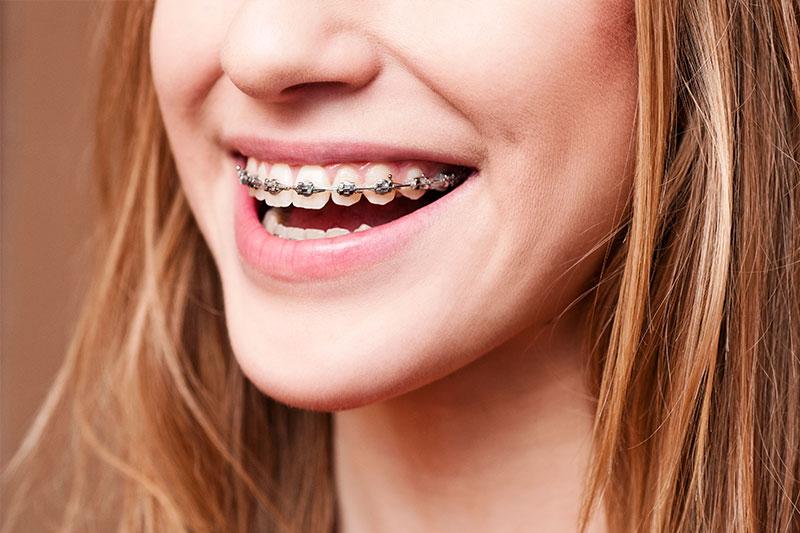 Orthodontics - Alpharetta Comprehensive Dentistry, Alpharetta Dentist